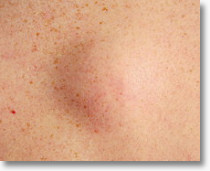 Precision Dermatology and Skin Surgery